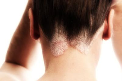 Visita dermatologica capelli
